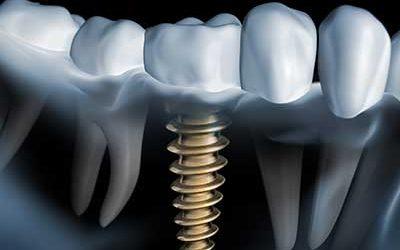 Warum wird ein Implantat benötigt?