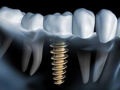 Implantat-180419104508