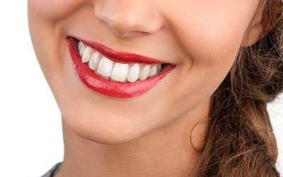 Weiße Zähne – kein Geheimnis und für jeden möglich