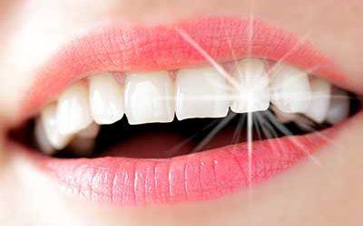 Ich möchte Zahnsteinchen als Zahnschmuck