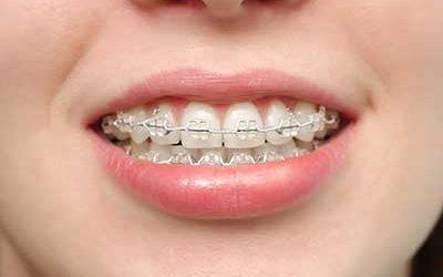 Wenn Zähne sehr schräg stehen