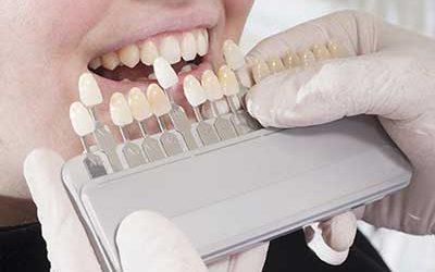 Kann man einzelne Zähne bleichen?