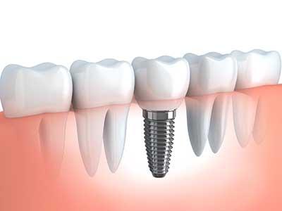 zahnersatz-implanta-180421105316